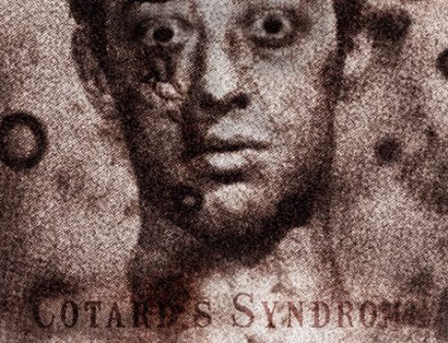 Cotord's Syndrome: The Living Walking With The Dead