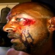 Pic of Todd Credeur face eaten   Victim of Cannibal attack in Louisiana