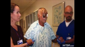 Ronald Poppo Hospital Pic - Victim of Zombie Cannibal attack in Miami, Florida