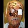Ronald Poppo pics of face eaten | Face eaten pics of Ronald Poppo in hospital