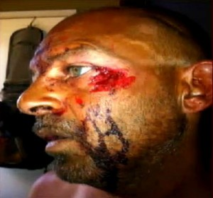 Pic of Todd Credeur face eaten | Victim of Cannibal attack in Louisiana